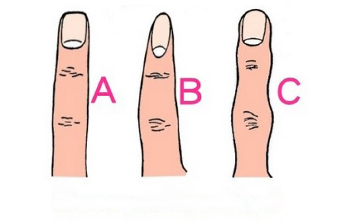 Oblik-prstiju-gatanje
